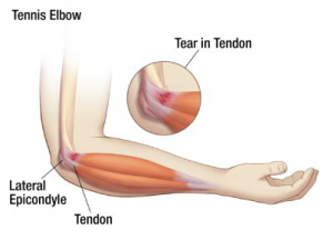 What is Tennis Elbow, what is the treatment, and how to prevent future episodes