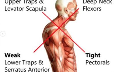 What is Upper Cross Syndrome ?