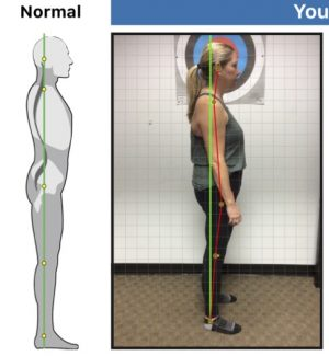 why posture matters