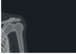 Shoulder Pain: Common Causes and Uncommon Treatment