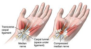who carpal tunnel syndrome treatment