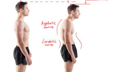 How to Have Good Posture Without A Posture Corrector