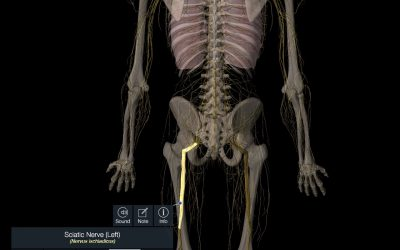 What Causes Sciatica and What is the Best Treatment?