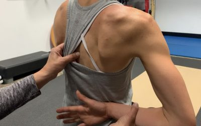 3 Must Do's in the Treatment Of Pinched Nerve